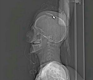 X-Ray depicting the bullet wound Mustafa sustained.
